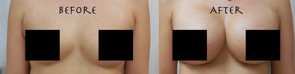 before - after breast augmentation