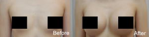 before - after breast augmentation2